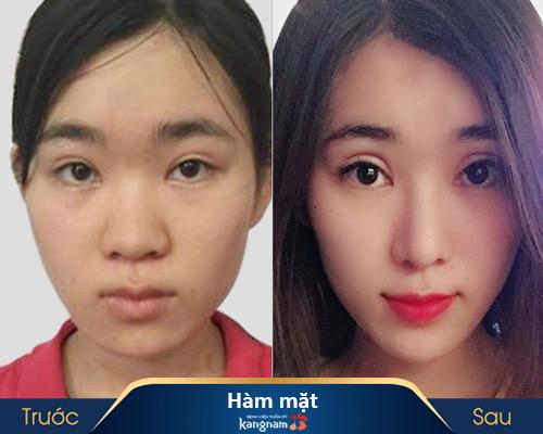 ảnh trước và sau thẩm mỹ hàm mặt 3
