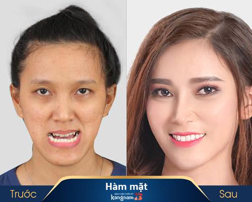 ảnh trước và sau thẩm mỹ hàm mặt 4