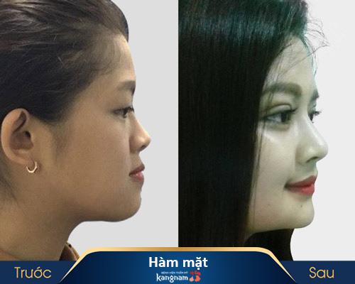 ảnh trước và sau thẩm mỹ hàm mặt 2