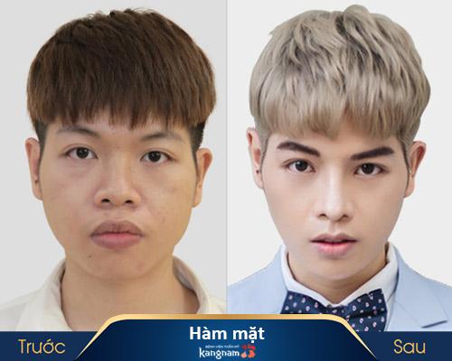 ảnh trước và sau thẩm mỹ hàm mặt