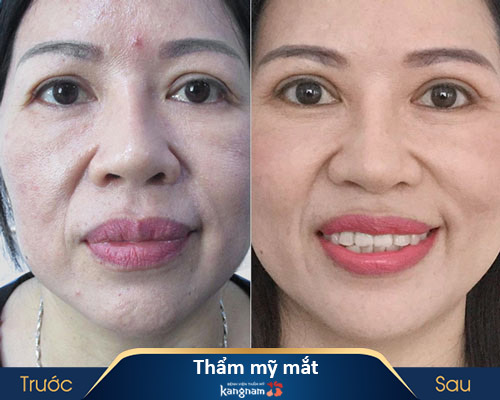 ảnh trước và sau thẩm mỹ mắt 1
