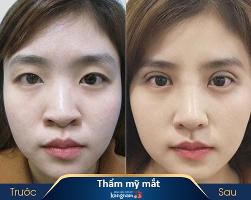 ảnh trước và sau thẩm mỹ mắt 2