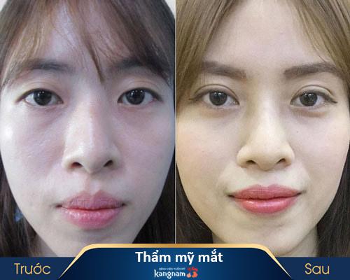 ảnh trước và sau thẩm mỹ mắt 3