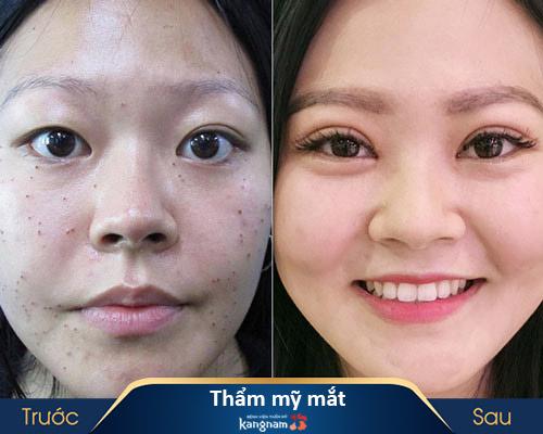 ảnh trước và sau thẩm mỹ mắt 4