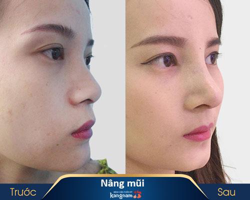 ảnh trước và sau nâng mũi 5