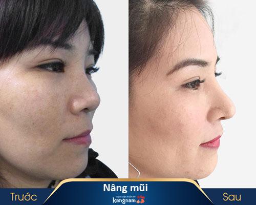 ảnh trước và sau nâng mũi 4