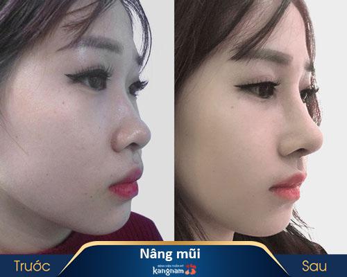 ảnh trước và sau nâng mũi 3