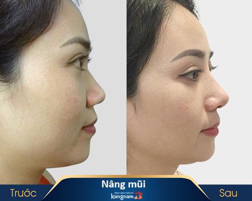 ảnh trước và sau nâng mũi 12