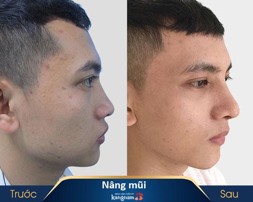 ảnh trước và sau nâng mũi 1