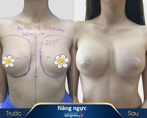 ảnh trước và sau thẩm mỹ ngực 2