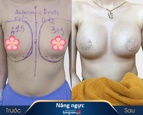 ảnh trước và sau thẩm mỹ ngực 1