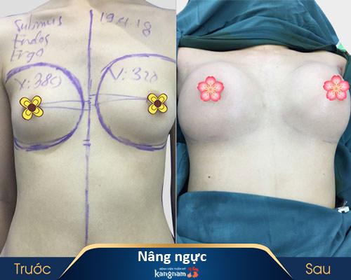 ảnh trước và sau thẩm mỹ ngực