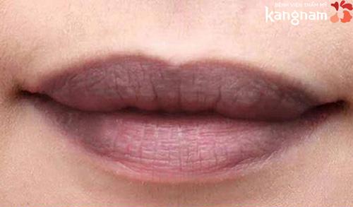 môi trên dày hơn môi dưới nữ
