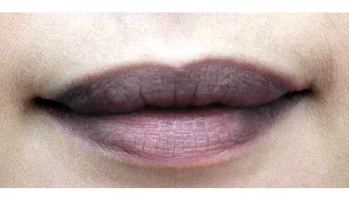 đàn ông môi thâm
