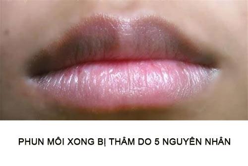 xăm môi bị thâm